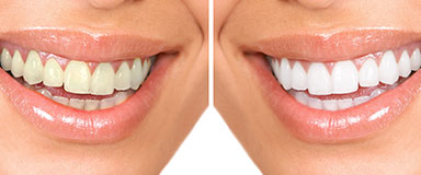 estetica-dental-i-facial